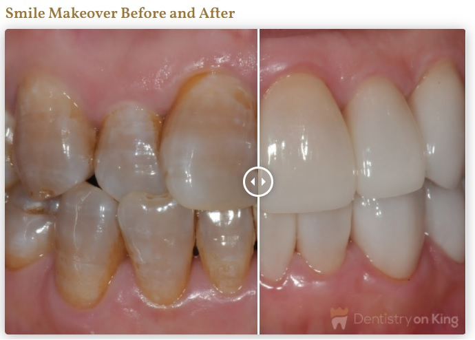 wedding smile makeover before after photos