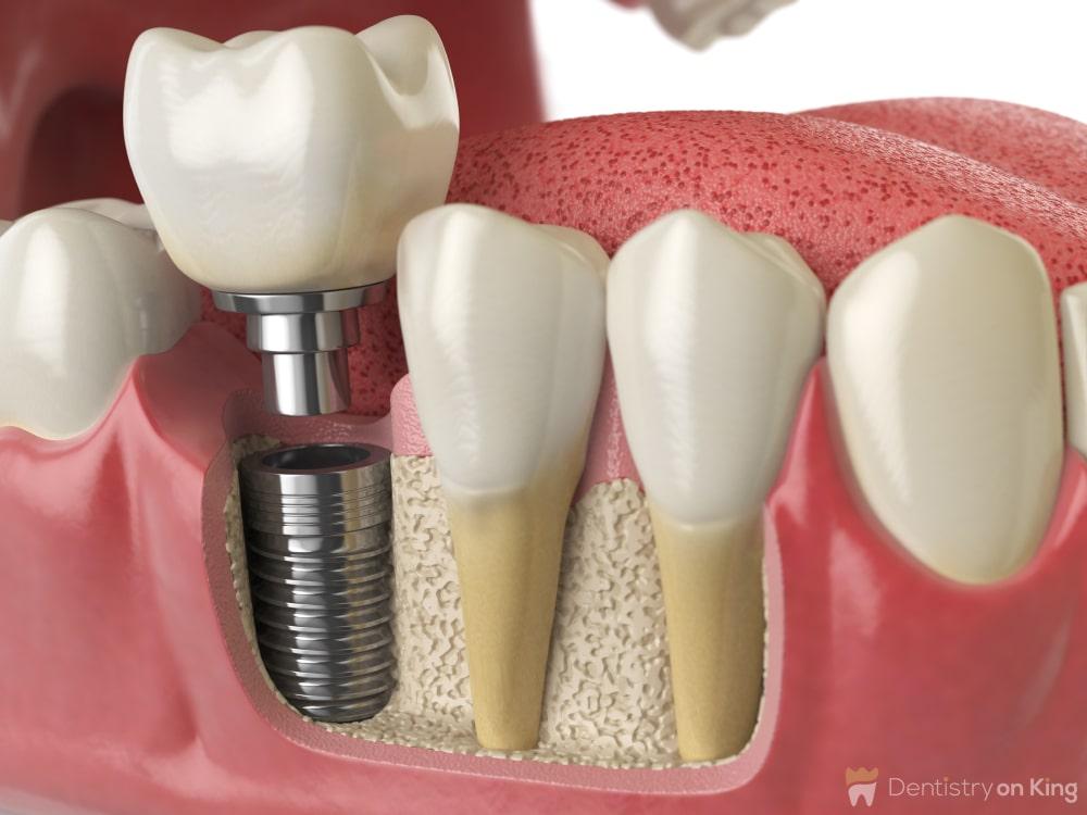 Dental Implant Toronto