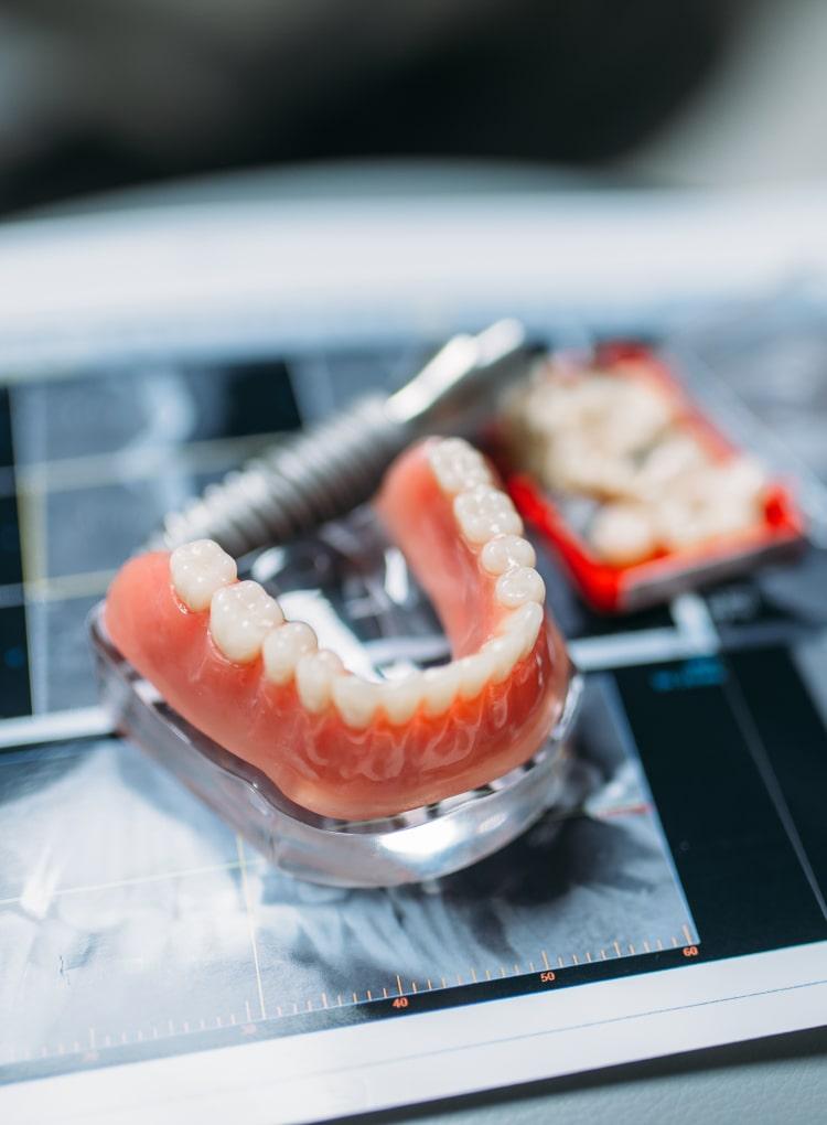Dentures Toronto