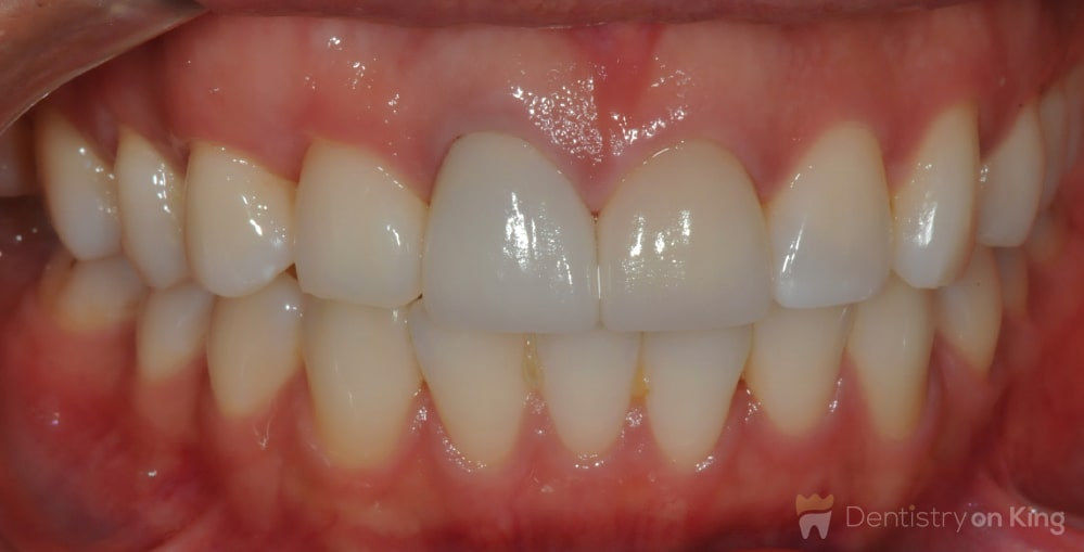 Invisalign Dentist Before and After Photos