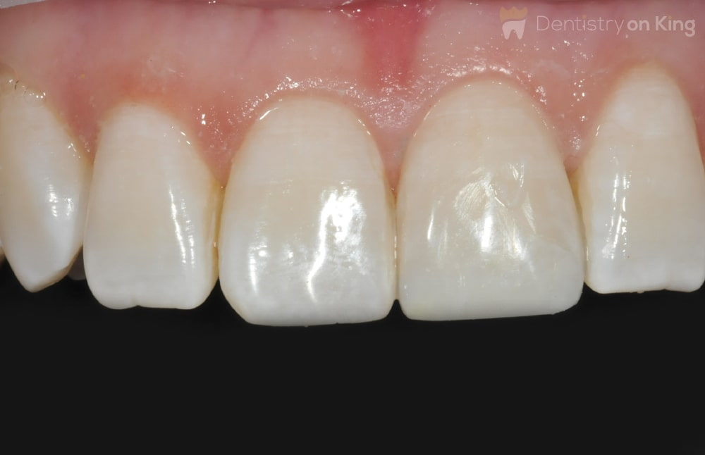 Teeth Bonding Before and After
