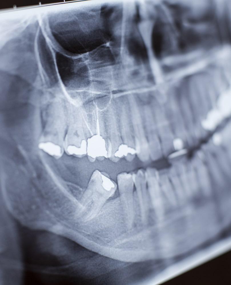 Wisdom Tooth Extraction Toronto