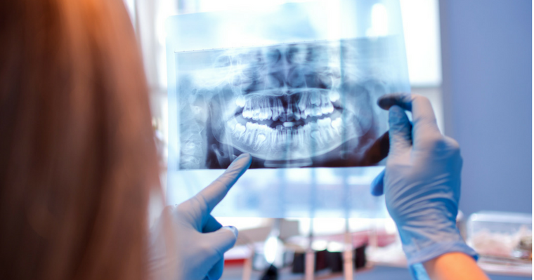 Is dental xray safe?