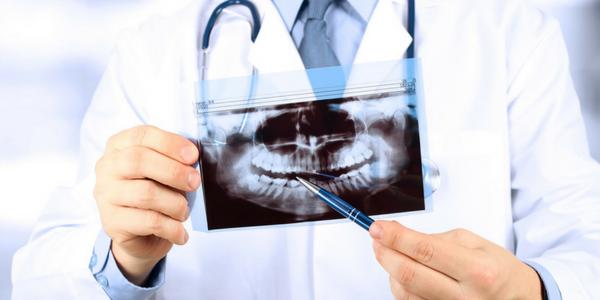 Dentist showing xray