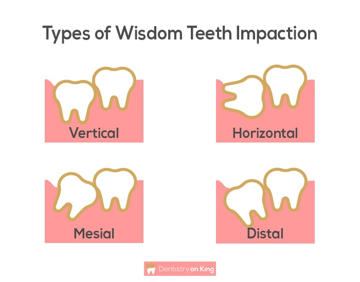 Types of Wisdom Teeth Impaction shown using graphics