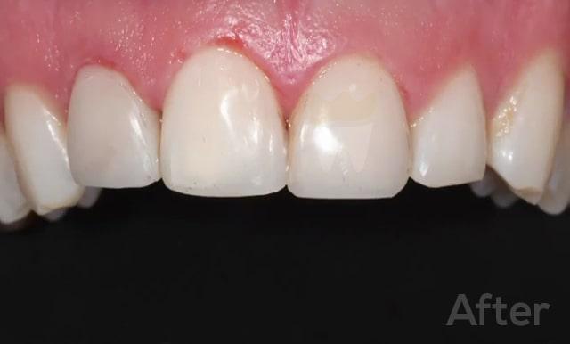 Emergency Cracked Teeth Treatment Before Photo