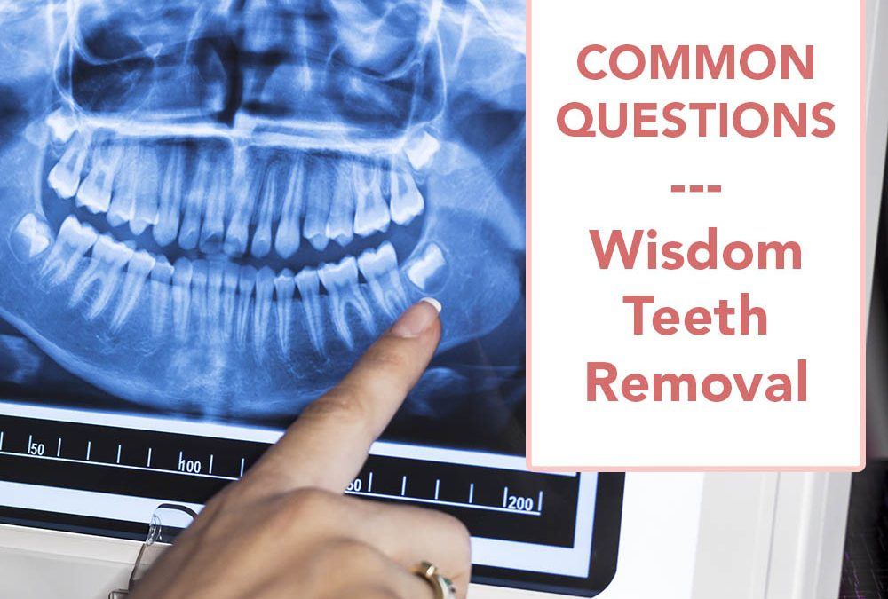 Common Questions About Wisdom Tooth Extraction